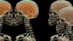 Not Just a Headache | Daniel Wiatkowski